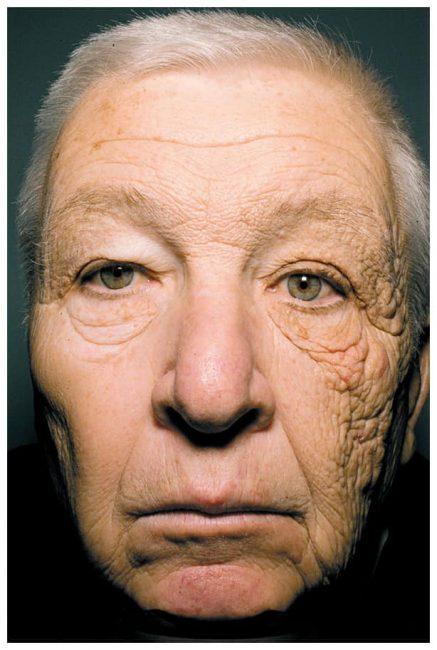 Tia UV là gì? Tác hại của tia UV và cách phòng tránh